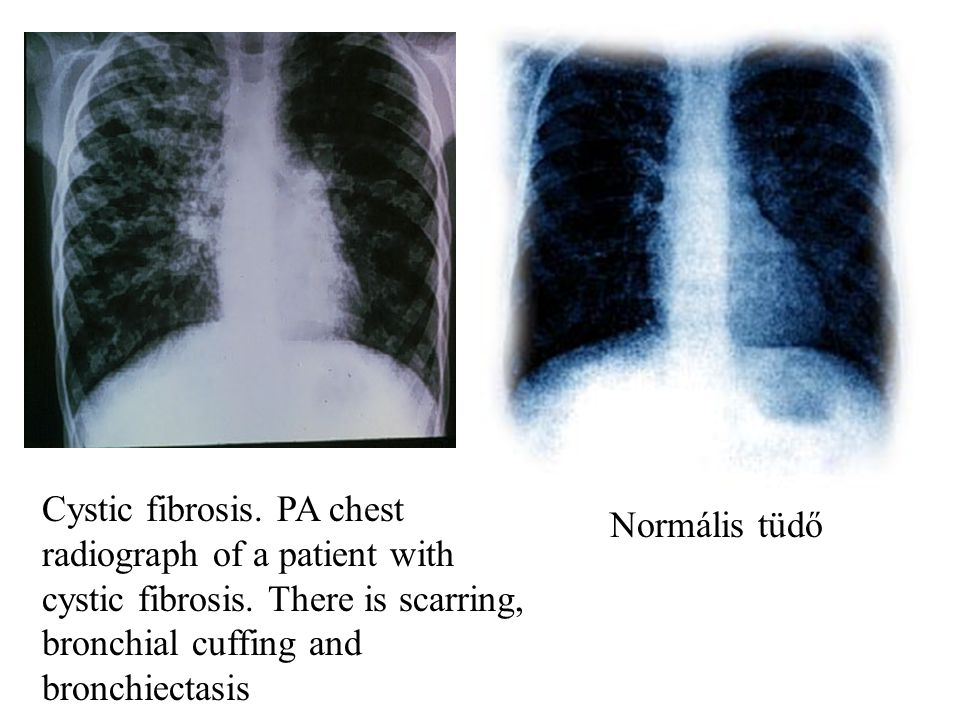 Cystic fibrosis. PA chest radiograph of a patient with cystic fibrosis