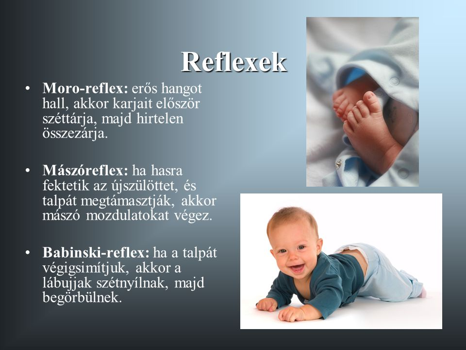 Reflexek Moro-reflex: erős hangot hall, akkor karjait először széttárja, majd hirtelen összezárja.