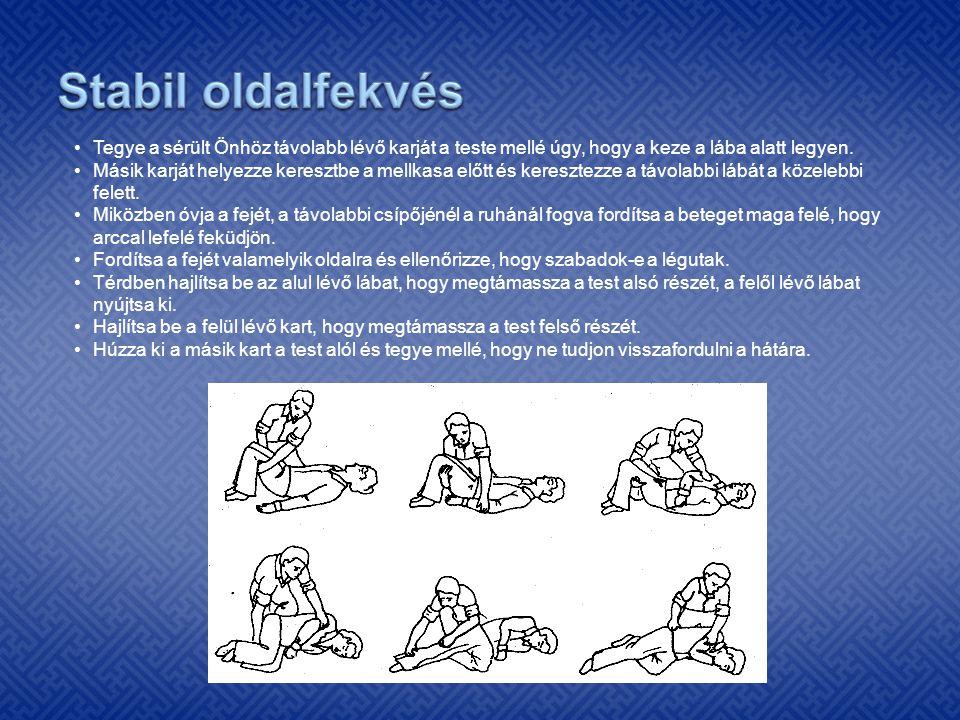 Stabil oldalfekvés Tegye a sérült Önhöz távolabb lévő karját a teste mellé úgy, hogy a keze a lába alatt legyen.