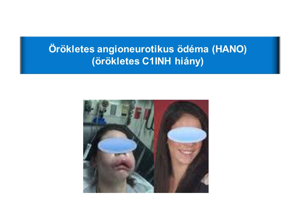Örökletes angioneurotikus ödéma (HANO) (örökletes C1INH hiány)