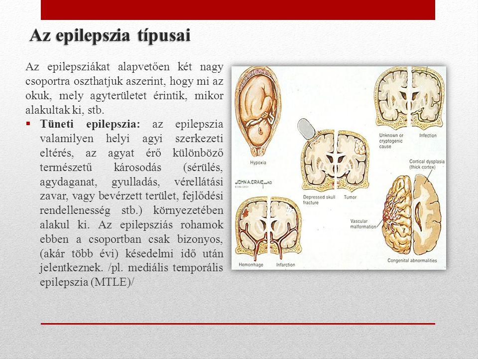Az epilepszia típusai