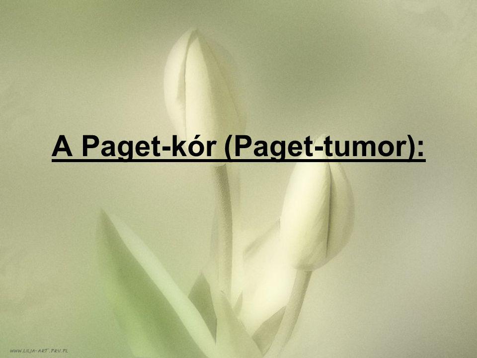 A Paget-kór (Paget-tumor):