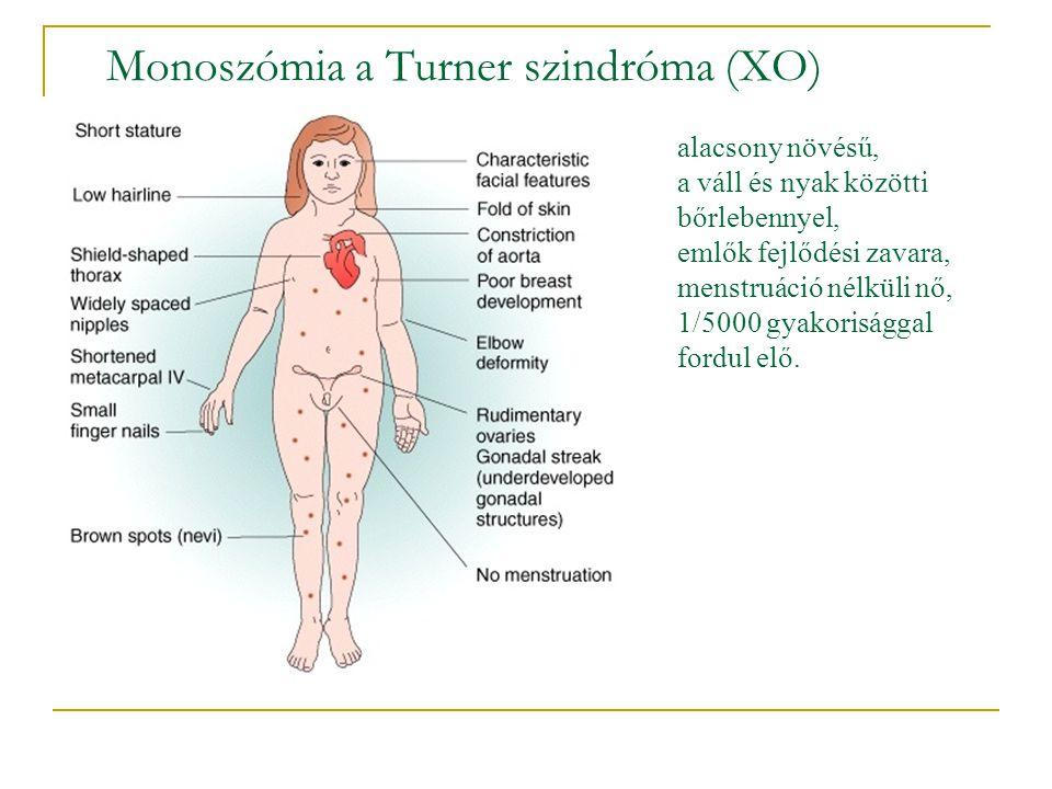 Monoszómia a Turner szindróma (XO)
