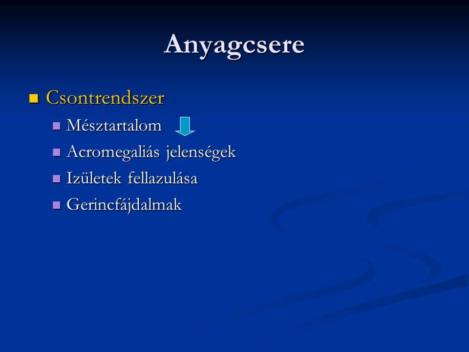 Anyagcsere Csontrendszer Mésztartalom Acromegaliás jelenségek