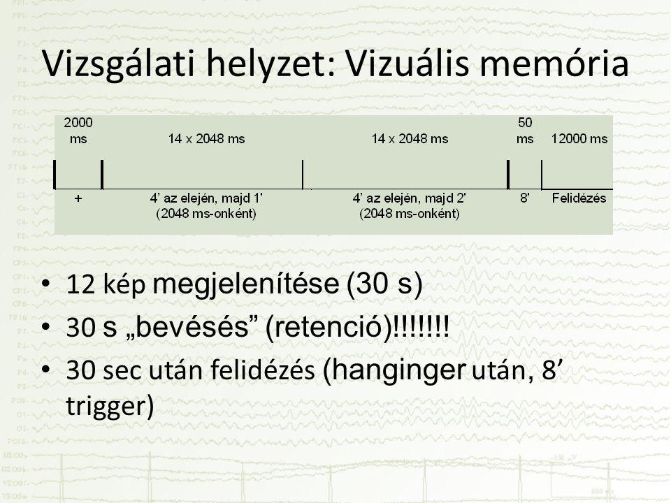 Vizsgálati helyzet: Vizuális memória