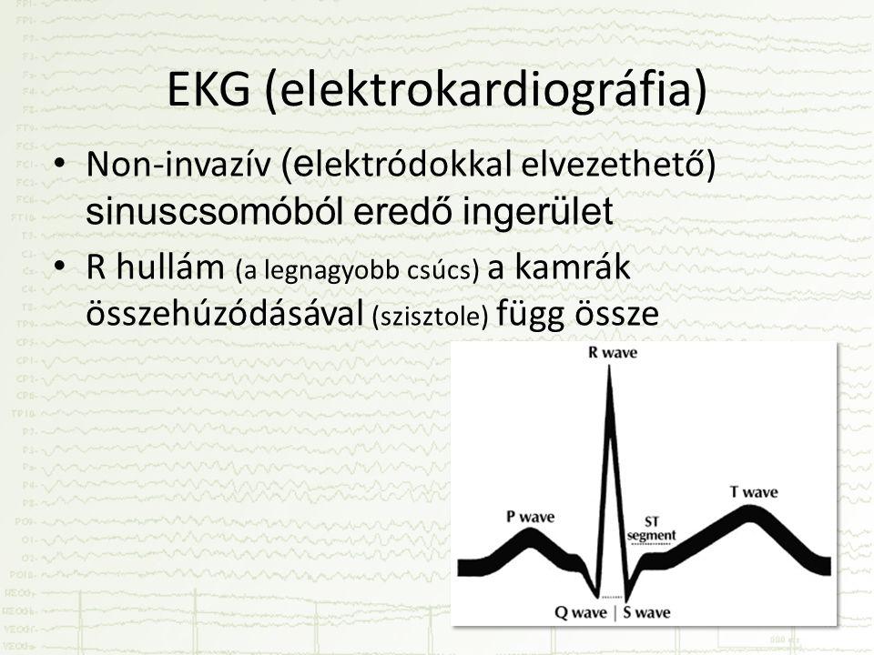 EKG (elektrokardiográfia)