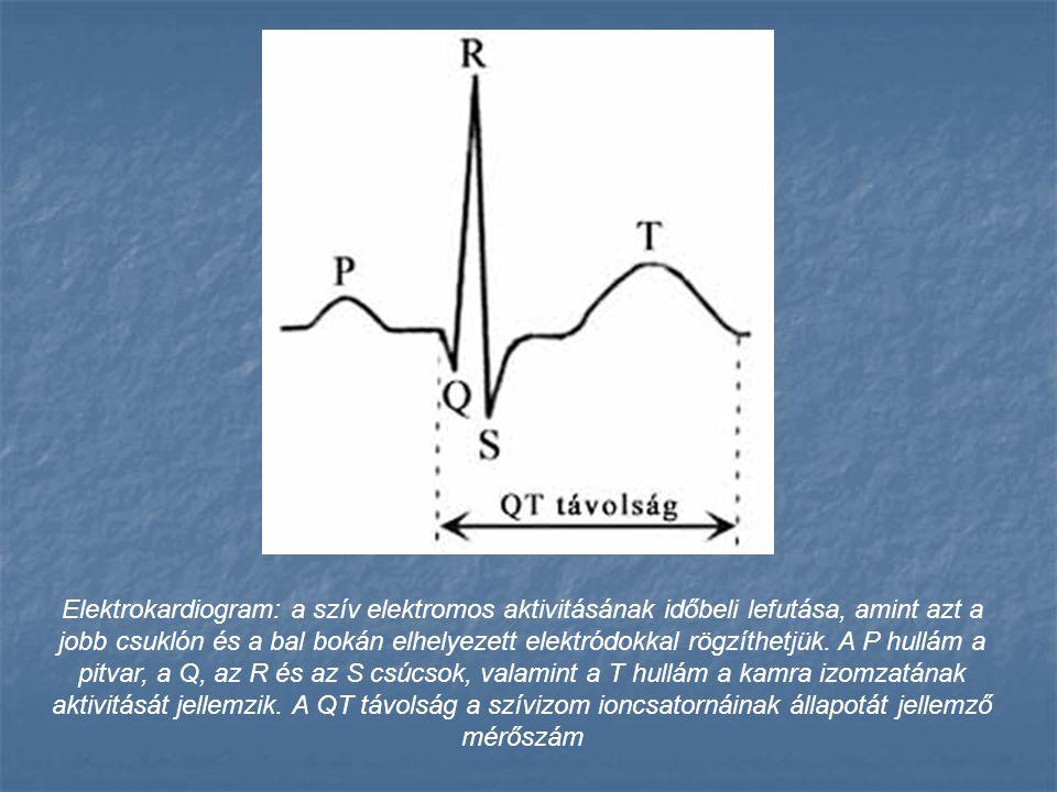 Elektrokardiogram: a szív elektromos aktivitásának időbeli lefutása, amint azt a jobb csuklón és a bal bokán elhelyezett elektródokkal rögzíthetjük.
