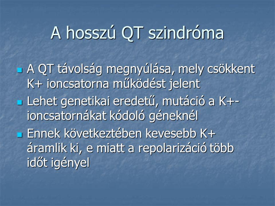 A hosszú QT szindróma A QT távolság megnyúlása, mely csökkent K+ ioncsatorna működést jelent.