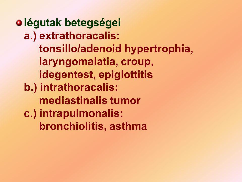 légutak betegségei a. ) extrathoracalis: