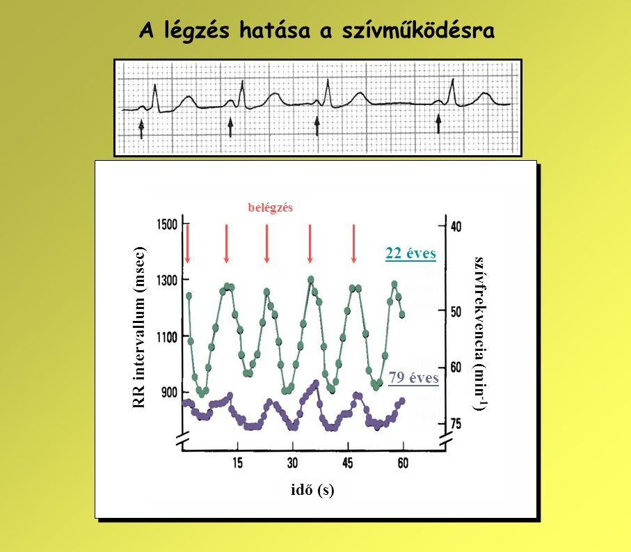 szívfrekvencia (min-1)