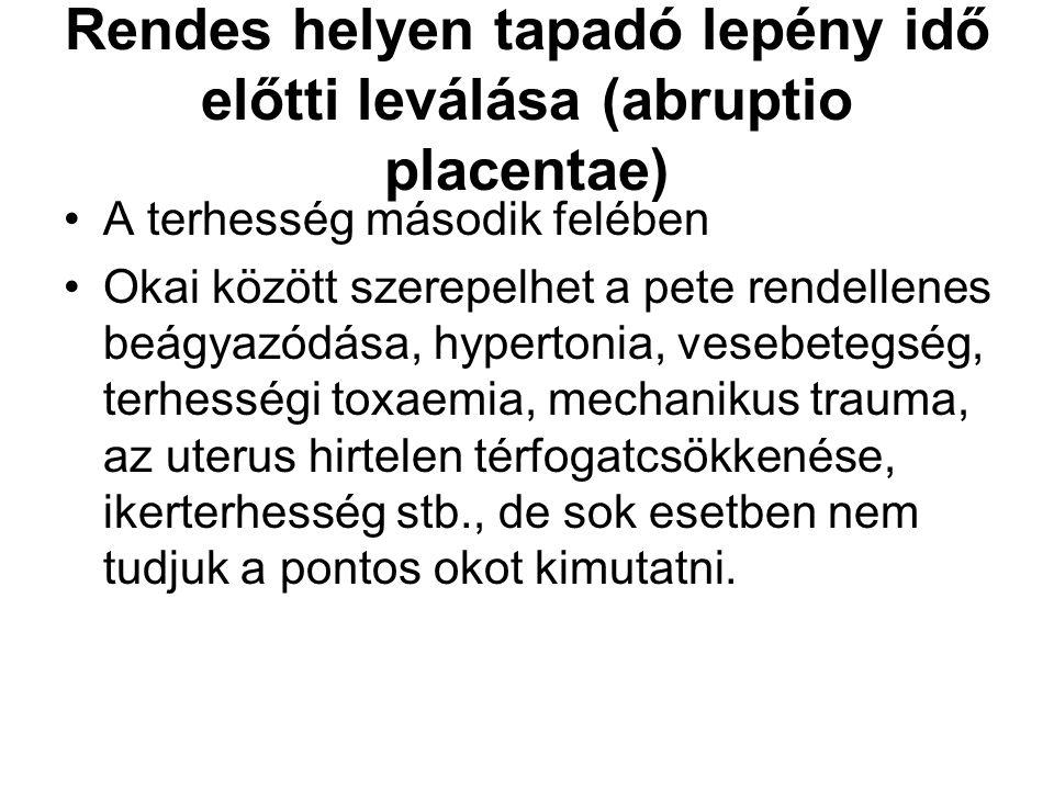 Rendes helyen tapadó lepény idő előtti leválása (abruptio placentae)