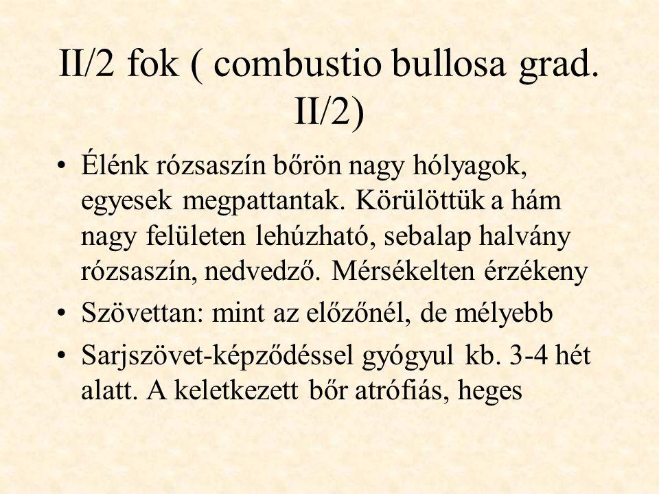 II/2 fok ( combustio bullosa grad. II/2)