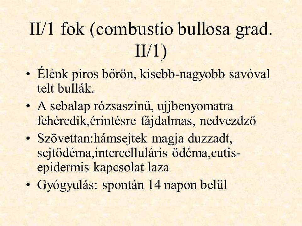 II/1 fok (combustio bullosa grad. II/1)