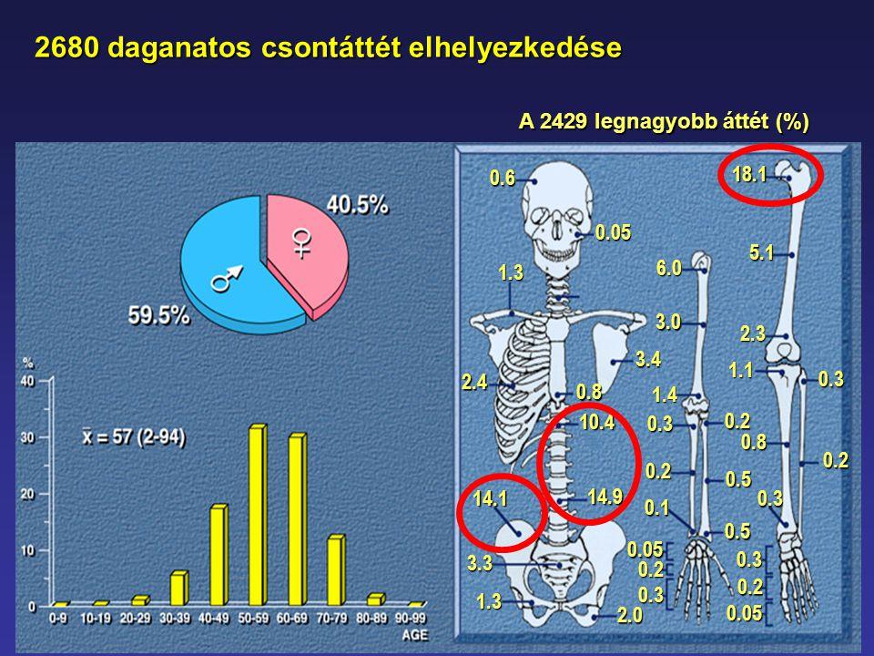 2680 daganatos csontáttét elhelyezkedése