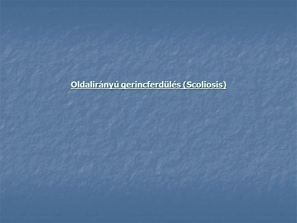 Oldalirányú gerincferdülés (Scoliosis)