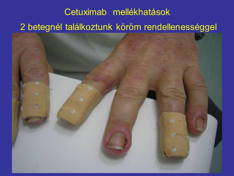 Cetuximab mellékhatások 2 betegnél találkoztunk köröm rendellenességgel