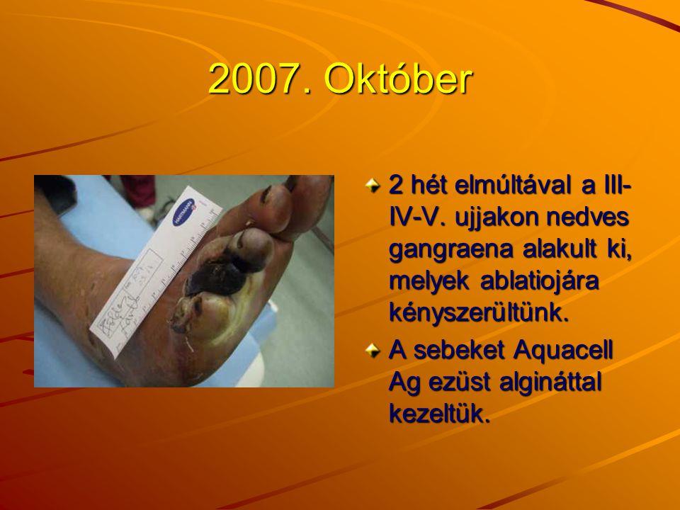 2007. Október 2 hét elmúltával a III-IV-V. ujjakon nedves gangraena alakult ki, melyek ablatiojára kényszerültünk.