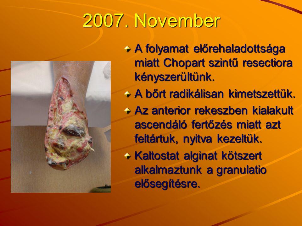 2007. November A folyamat előrehaladottsága miatt Chopart szintű resectiora kényszerültünk. A bőrt radikálisan kimetszettük.