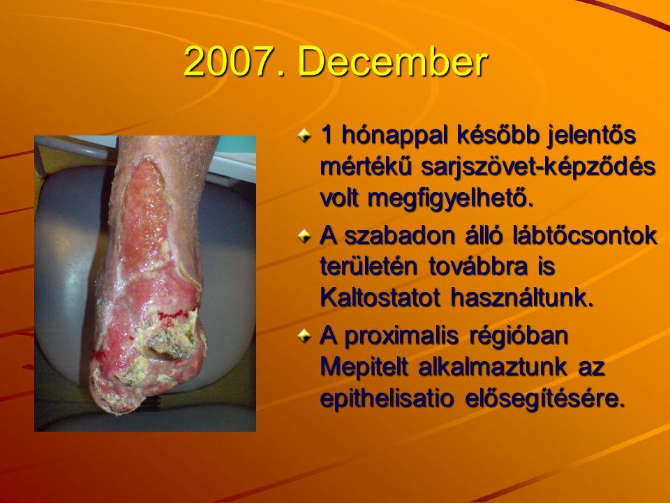 2007. December 1 hónappal később jelentős mértékű sarjszövet-képződés volt megfigyelhető.
