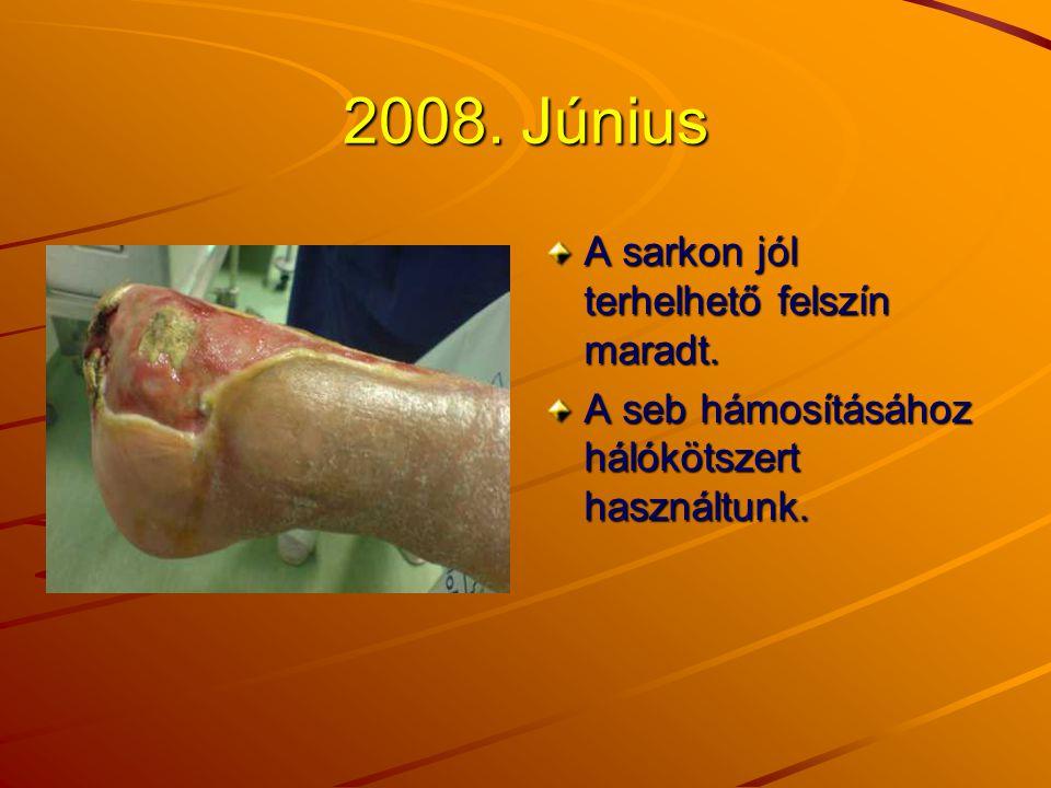 2008. Június A sarkon jól terhelhető felszín maradt.