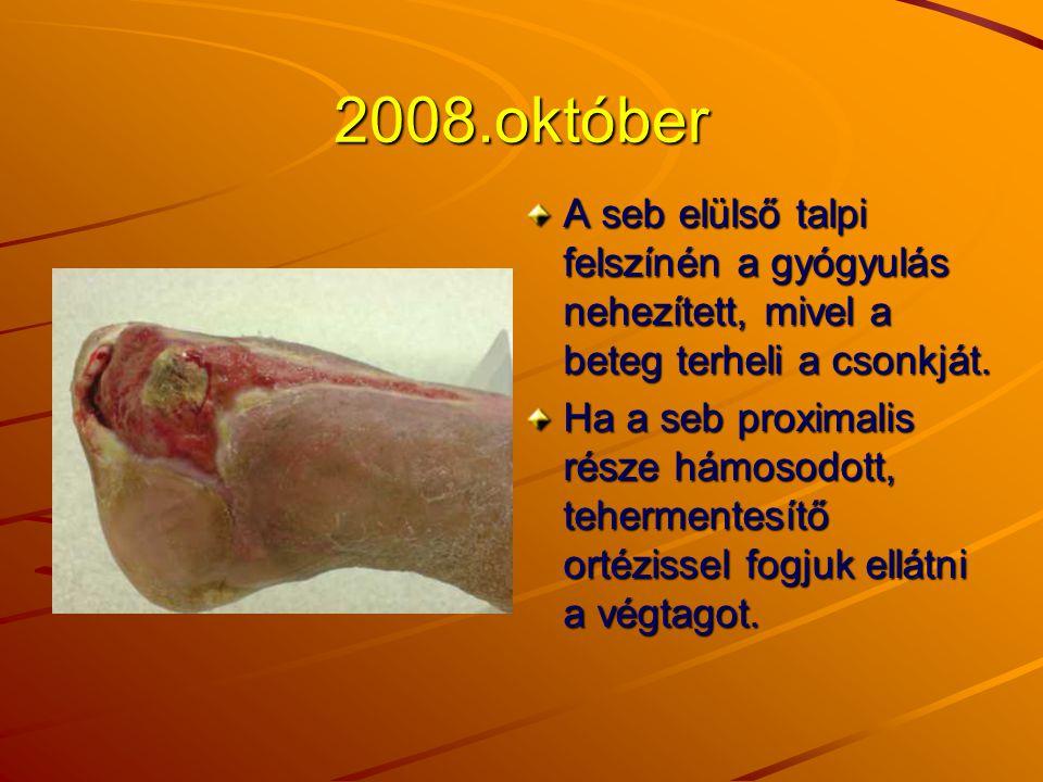 2008.október A seb elülső talpi felszínén a gyógyulás nehezített, mivel a beteg terheli a csonkját.