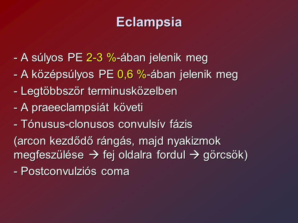 Eclampsia - A súlyos PE 2-3 %-ában jelenik meg