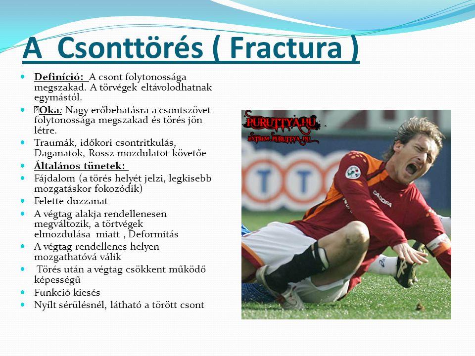 A Csonttörés ( Fractura )