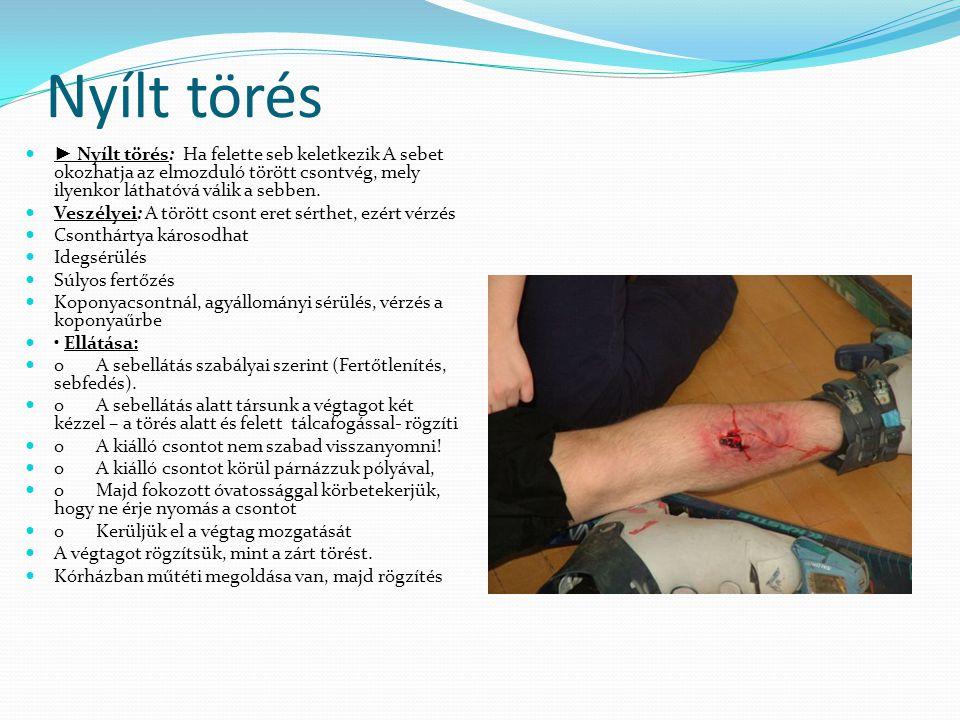 Nyílt törés ► Nyílt törés: Ha felette seb keletkezik A sebet okozhatja az elmozduló törött csontvég, mely ilyenkor láthatóvá válik a sebben.