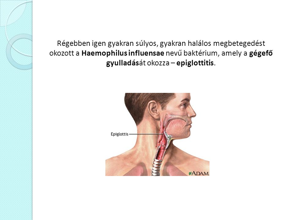 Régebben igen gyakran súlyos, gyakran halálos megbetegedést okozott a Haemophilus influensae nevű baktérium, amely a gégefő gyulladását okozza – epiglottitis.