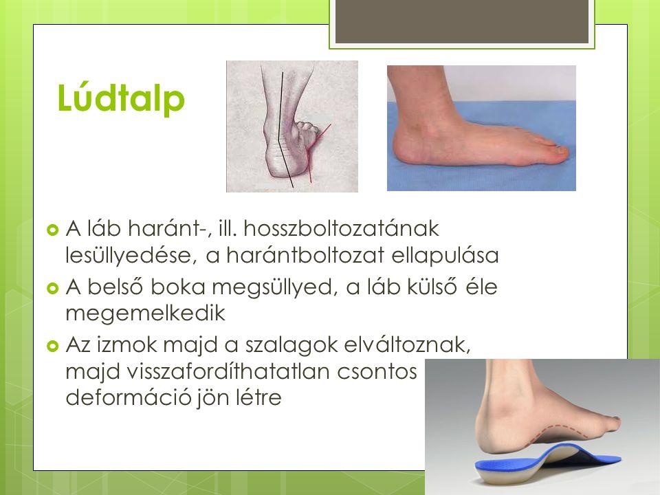 Lúdtalp A láb haránt-, ill. hosszboltozatának lesüllyedése, a harántboltozat ellapulása. A belső boka megsüllyed, a láb külső éle megemelkedik.