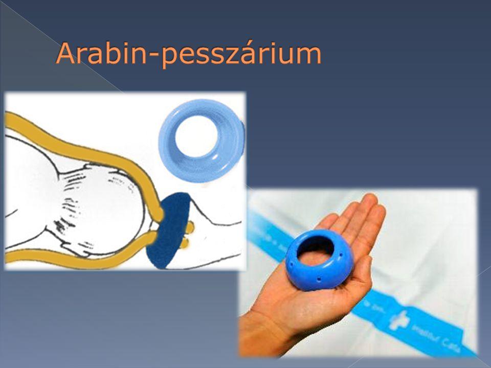 Arabin-pesszárium
