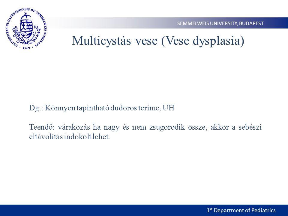 Multicystás vese (Vese dysplasia)