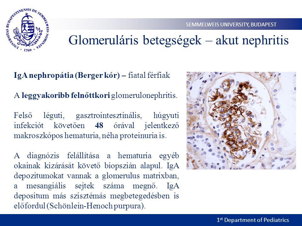 Glomeruláris betegségek – akut nephritis