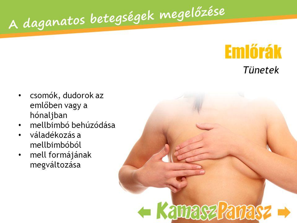 Emlőrák Tünetek csomók, dudorok az emlőben vagy a hónaljban