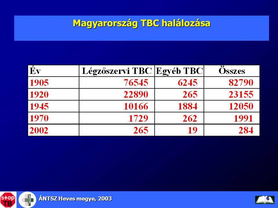 Magyarország TBC halálozása