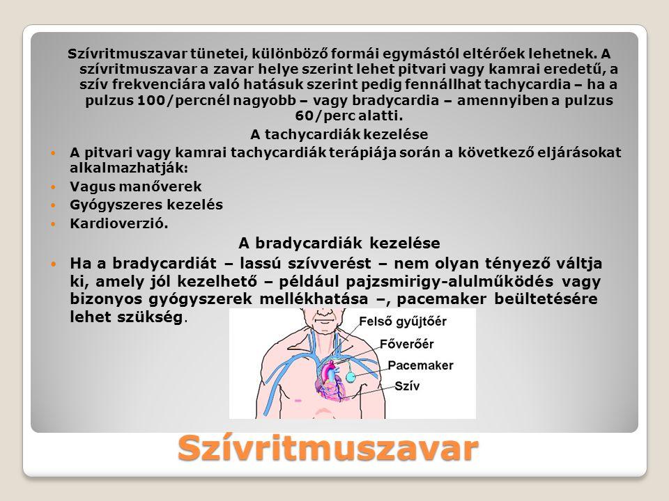 A bradycardiák kezelése