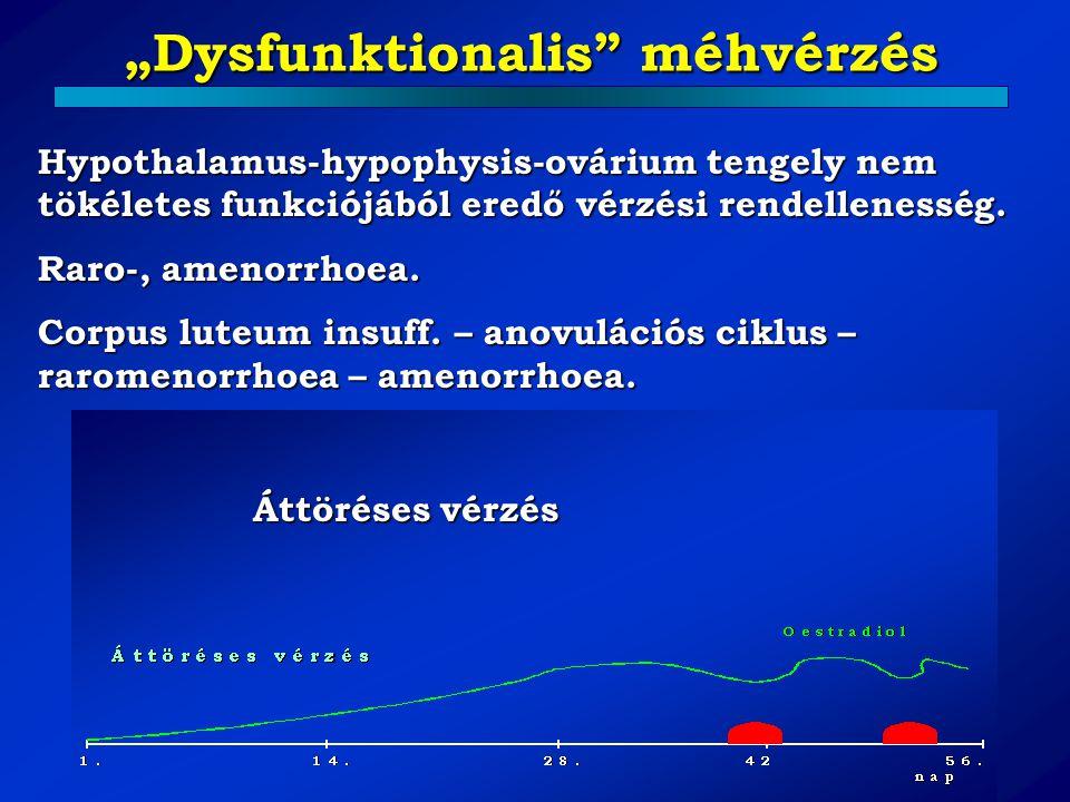 """""""Dysfunktionalis méhvérzés"""