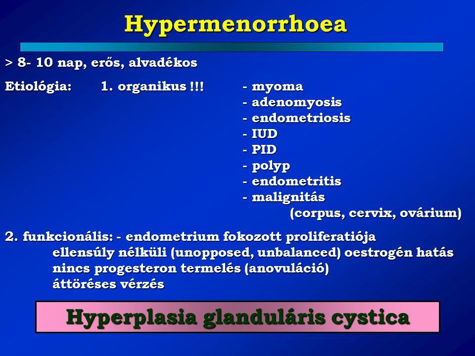 Hyperplasia glanduláris cystica