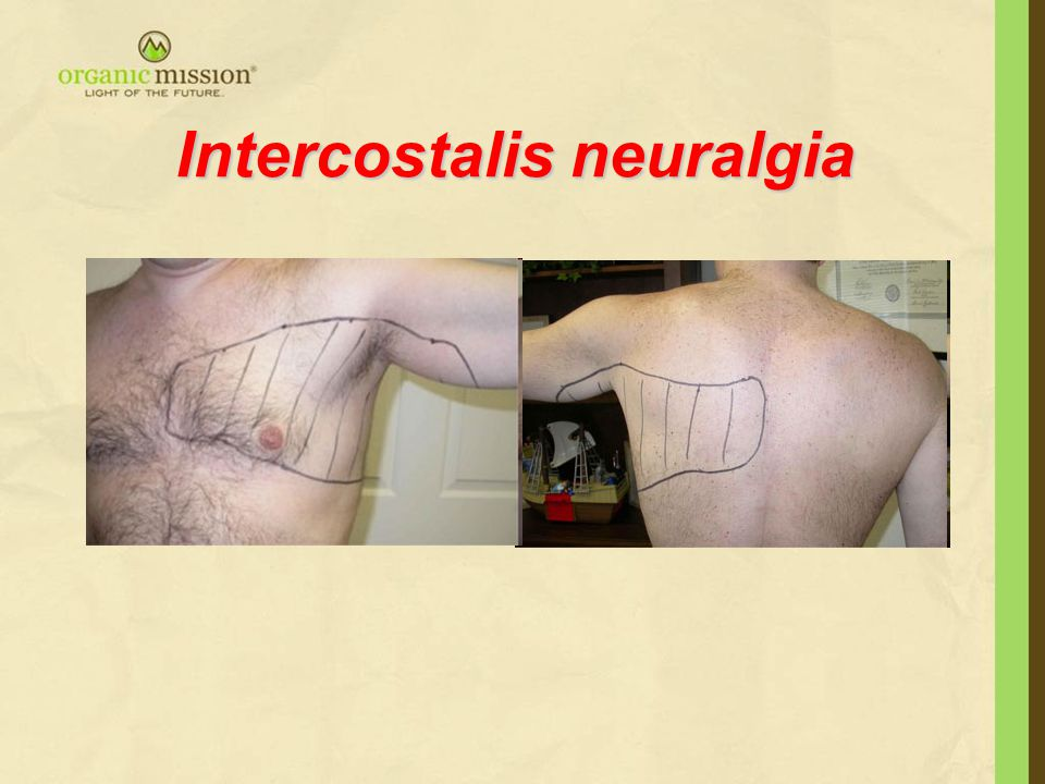Intercostalis neuralgia