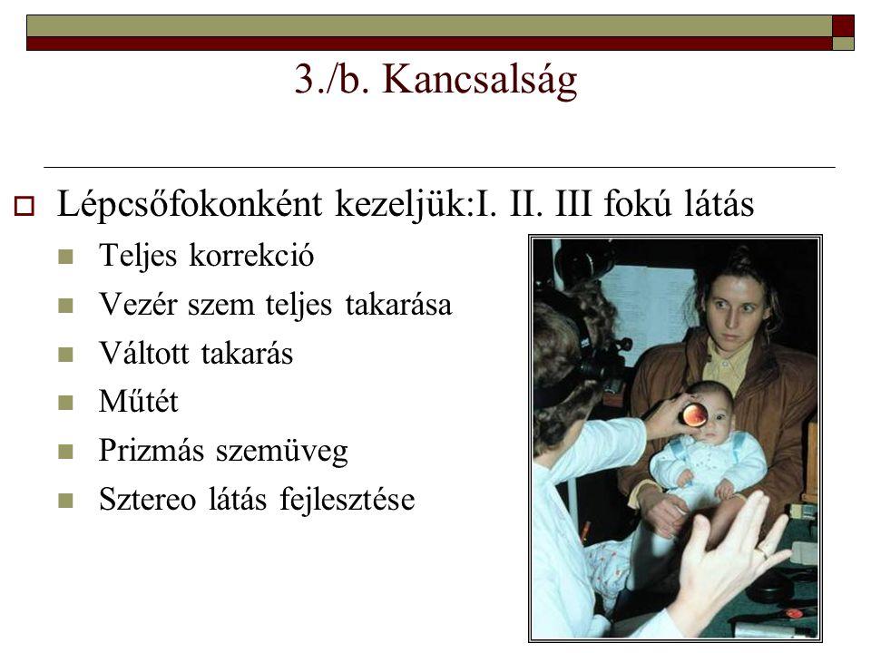3./b. Kancsalság Lépcsőfokonként kezeljük:I. II. III fokú látás