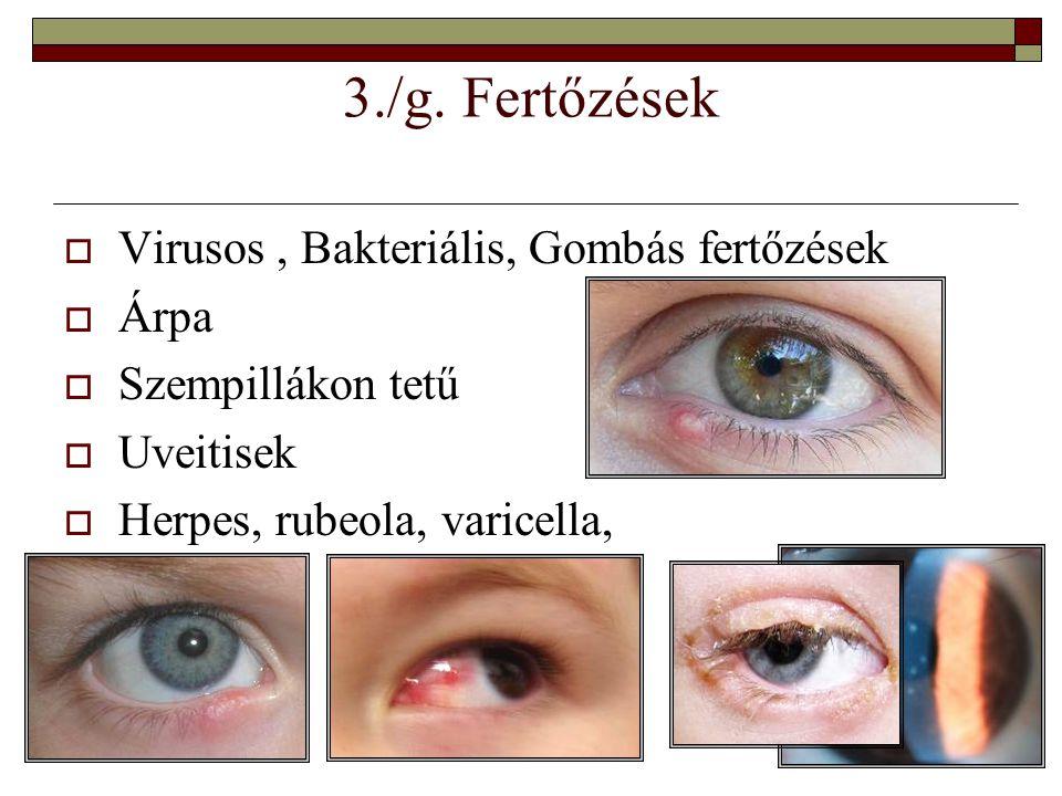 3./g. Fertőzések Virusos , Bakteriális, Gombás fertőzések Árpa
