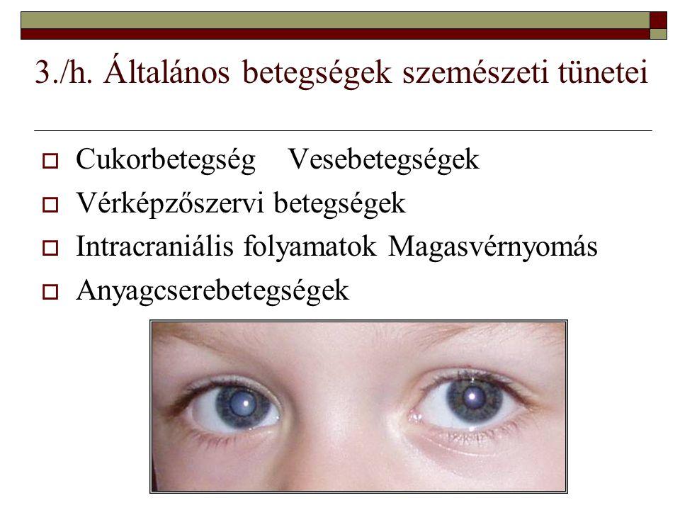 3./h. Általános betegségek szemészeti tünetei