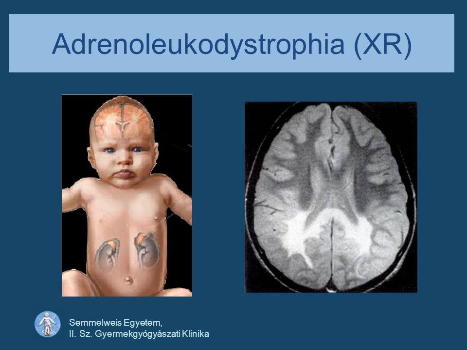 Adrenoleukodystrophia (XR)