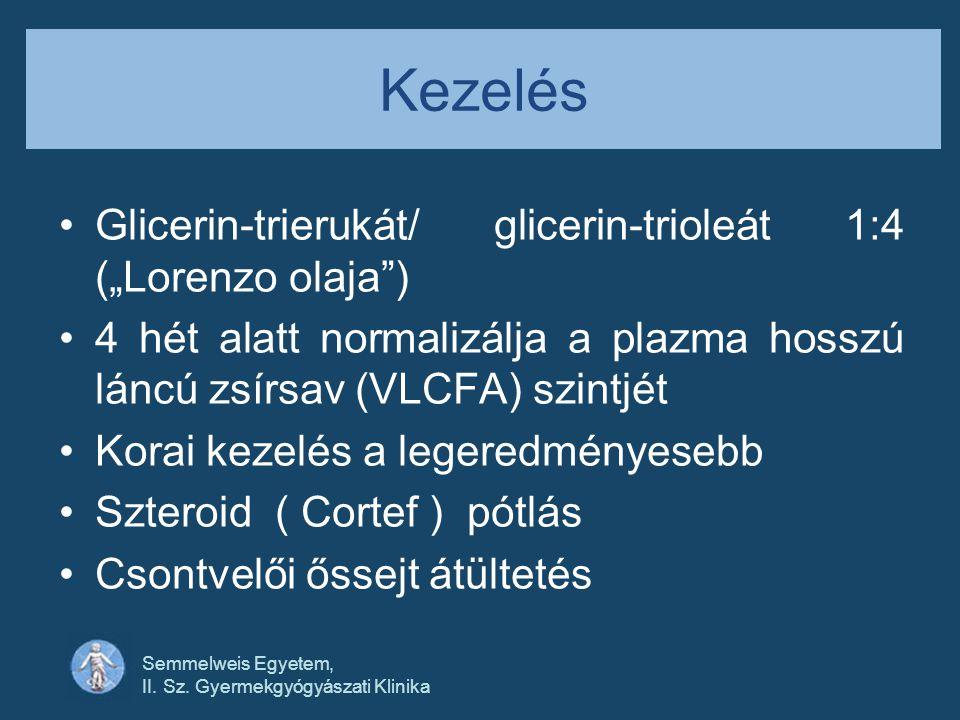 """Kezelés Glicerin-trierukát/ glicerin-trioleát 1:4 (""""Lorenzo olaja )"""