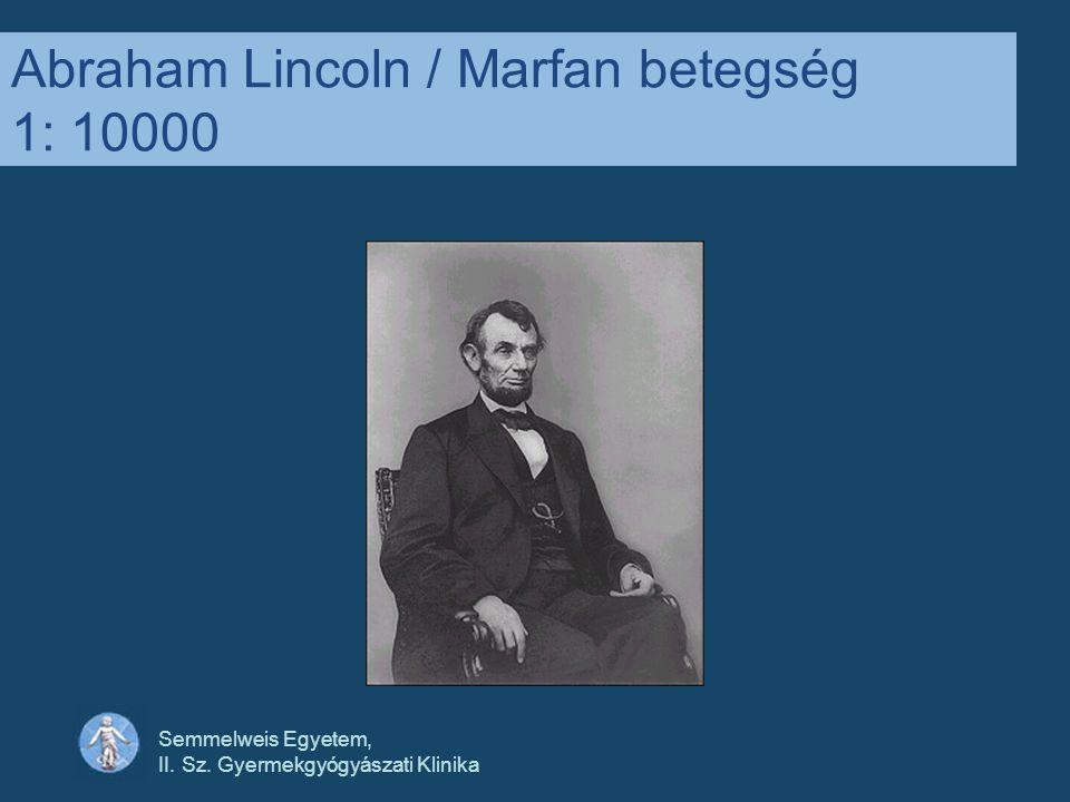 Abraham Lincoln / Marfan betegség 1: 10000