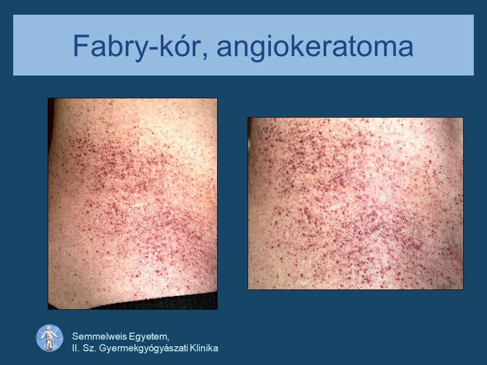 Fabry-kór, angiokeratoma