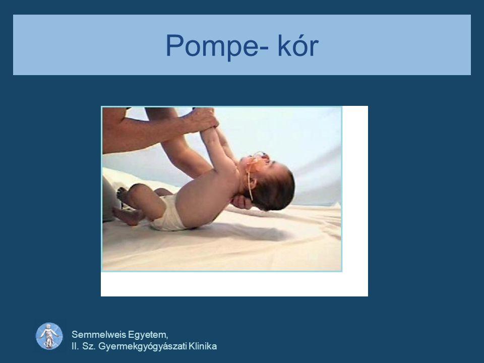 Pompe- kór Semmelweis Egyetem, II. Sz. Gyermekgyógyászati Klinika