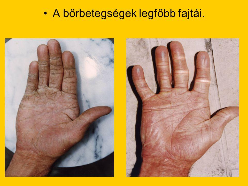 A bőrbetegségek legfőbb fajtái.