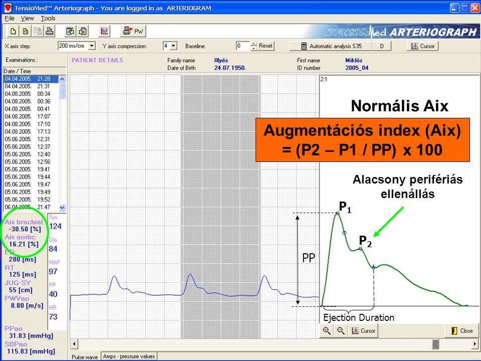 Normális Aix Augmentációs index (Aix) = (P2 – P1 / PP) x 100