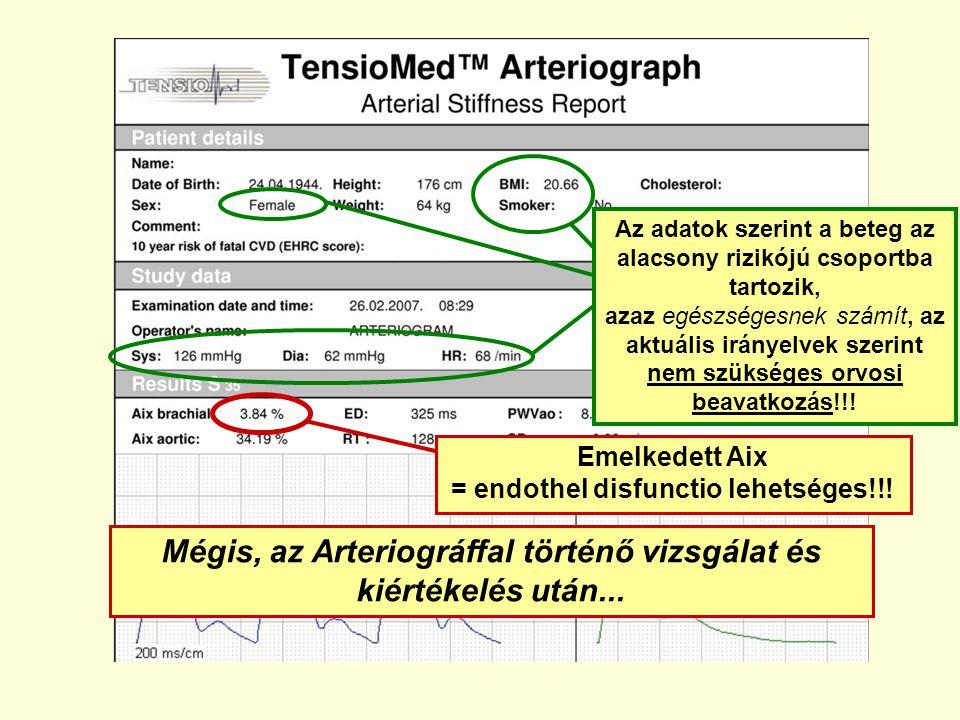 Mégis, az Arteriográffal történő vizsgálat és kiértékelés után...
